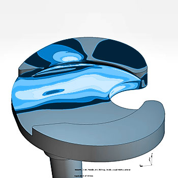 Implant Testing - Tibial Component Finite Element Analysis ASTM F3334